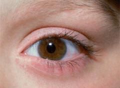 eye-5