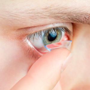 Oorzaken droge ogen