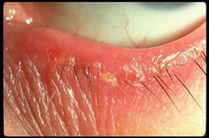 Anterieure Blefaritis