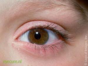 Symptomen Blefaritis