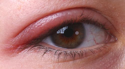 EyeCure oogmasker praktisch hulpmiddel bij behandeling Meibomse klierdisfunctie (MGD)